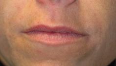 Avant et après injection d'acide hyaluronique