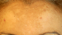 Le chloasma est une pigmentation brune du visage, fréquente au niveau du front