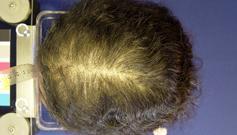 Les meilleures vitamines pour le renforcement des cheveu et les ongles