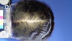 Avant et aprés greffe de cheveux