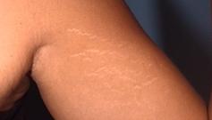 Vergetures sur un bras