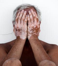 Vitiligo au niveau des mains