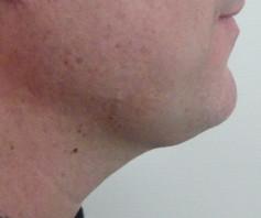 Après lifting cervico-facial